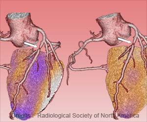 New Heart Attack Registry