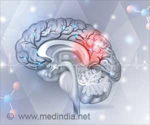 New Approach to Slow Alzheimer's Disease Progression Identified