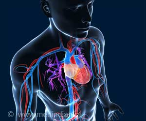 Heart Disease can be Treated by Controlling the Accumulation of Ceramides