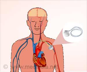 CRT Defibrillator May Improve Heart Function In Certain Patients
