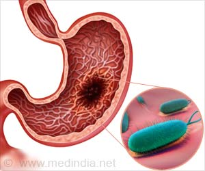 Cancer Prevention Drug Reduces Virulence of H. Pylori Bacterium