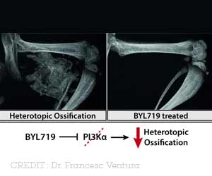 New Treatment to Fight 2 Bone Diseases Discovered