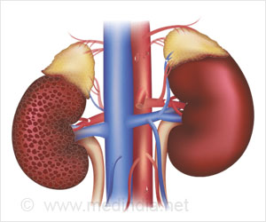 Chronic Kidney Disease on Rise in India