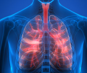 Fibrotic Lung Damage Could be Caused by Fat