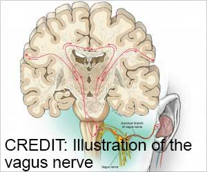 Nerve Stimulation Boosts Language Learning Skills