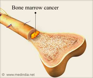 Bone Marrow Disease is Stimulated by Vitamin D and Macrophages