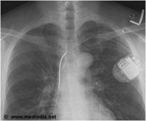 Patients With Pacemaker and Defibrillator at Risk Due to Poor Health Literacy