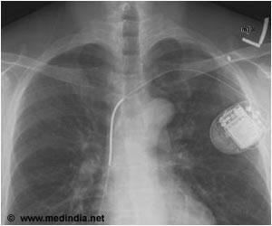 Computer Program can Predict Risk of Deadly Irregular Heart Beats