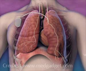 Implantable Device to Treat Central Sleep Apnea