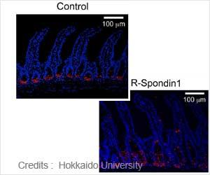Novel Approach Developed Can Restore Gut's Ecosystem