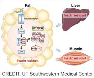 Insulin Resistance Gene Found in Fat: Study