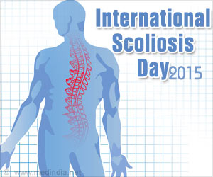 Monitoring Scoliosis Patients Prevents Curve Progression