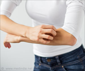 Itchy Skin More Likely to Affect Health and Well-being of Many Kidney Disease Patients