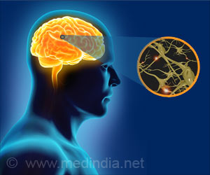 Mono Virus Increases the Risk of Multiple Sclerosis