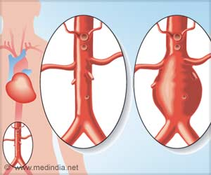 Keyhole Surgery Shows Better Outcomes For Ruptured Aneurysm