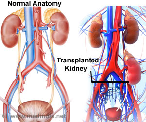 First Kidney Transplant from Deceased Donor