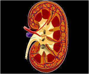 Race, Insurance Status Related to Likelihood of Being Assessed for Kidney Transplantation: Study