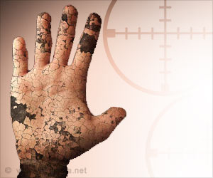 More Than Half of Leprosy Cases are from India: WHO