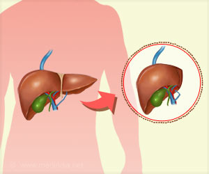 Liver Transplantation from a Live Donor is Safe