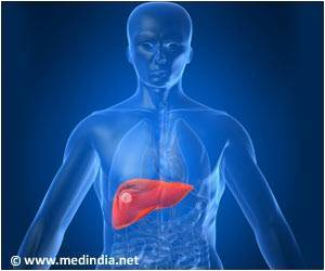 Increasing Waist Size, Type 2 Diabetes Increases Risk of Liver Cancer