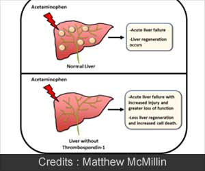 New Therapy Target for Drug-induced Liver Failure Discovered