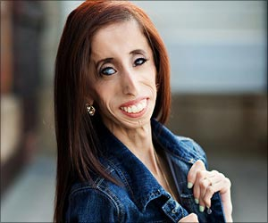 World's Ugliest Woman Opens Up About the Abuse and Ridicule