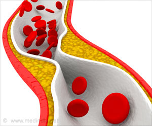 Senescent Cells Linked To Atherosclerosis Progression