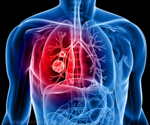 Advanced 3D Imaging Technique to Spot Deadly Lung Disease