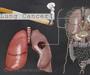 Smoke-Free Laws Reduce New Cases of Lung Cancer