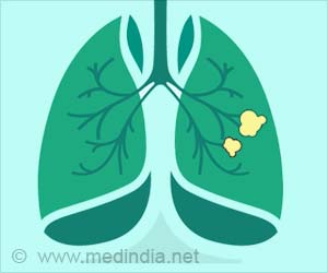 Mechanism of Resistance to Lung Cancer Drug Discovered