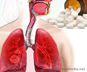 Arthritis Drug Along With an Agent Can Shut Down Gene-Mediated Lung Cancer