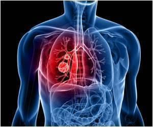 Ganetespib in KRAS-Mutant Non Small Cell Lung Cancer