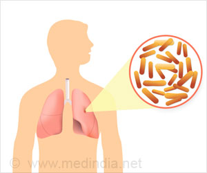 Virulent Mycobacterium Causes Severe Lung Infection in Cystic Fibrosis Patients