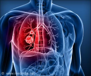 Elderly Lung Cancer Patients Undergoing Radiation Have Lower Incidence of Esophagitis