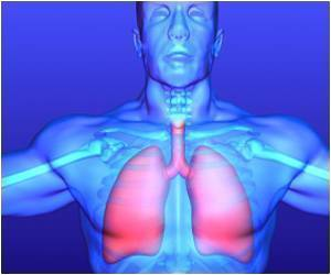 Fluid in the Lungs - Mechanism That Causes Pleural Effusion Identified