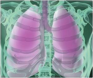 Survival Rate in Lung Cancer Patients