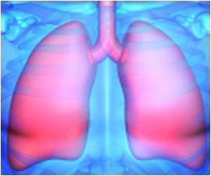 Blood Proteins Associated With Early Development of Lung Cancer Identified