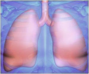 Pemetrexed Efficacy Prediction With Lung Cancer ALK Rearrangement: Study