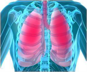 Scientists Develop Highly Sensitive Tech That Allows Early Diagnosis of Lung Cancer