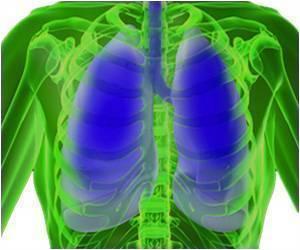 Treatment for Women With Lung Cancer Who are Never Smokers Being Researched