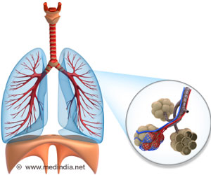 Curcumin may Slow Spread of Lung Lining Cancer