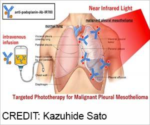 Shining Light on Rare Malignant Lung Cancer: Pleural Mesothelioma