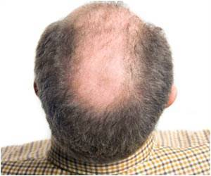 Gravity Could be the Reason for Male Pattern Baldness