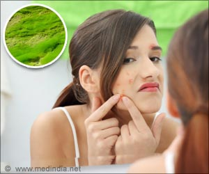 Mumbai-Based Drug Firm Gets USFDA Approval For Acne Treatment Medicine