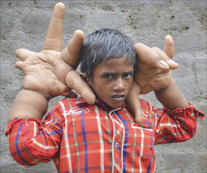 Indian Boy's Giant Hands Forced Him To Leave School