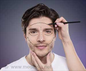 Men Who Undergo Facial Plastic Surgery are More Attractive and Trustworthy