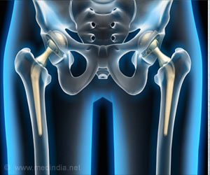 Hip Replacement Surgery Does Not Improve Level Of Physical Activity
