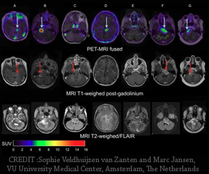 Pediatric Brain Tumors : PET/CT Scans Helps Predict Therapy Effectiveness