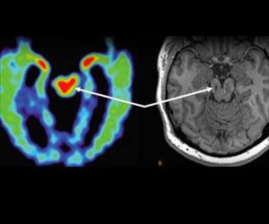 MRI Scans may be Useful in Diagnosing Chronic Traumatic Encephalopathy