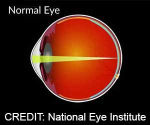 Multifocal Contact Lenses Reduce Nearsightedness in Children